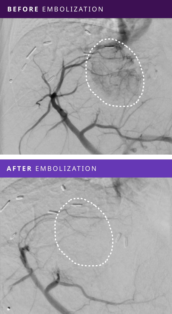 Before and After Tumor Embolization - Patient #2