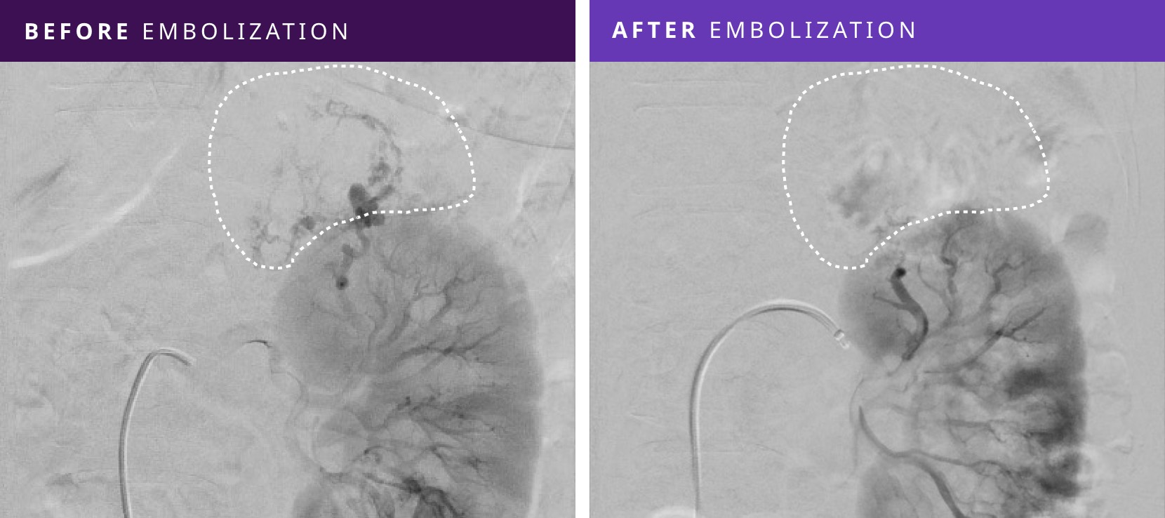 Before and After Tumor Embolization - Patient #3