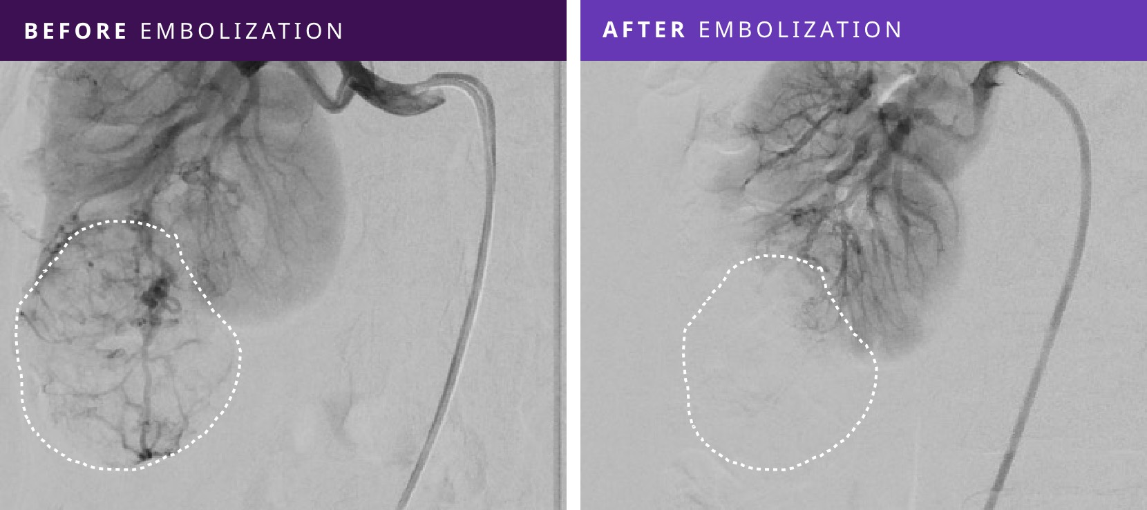 Before and After Tumor Embolization - Patient #4
